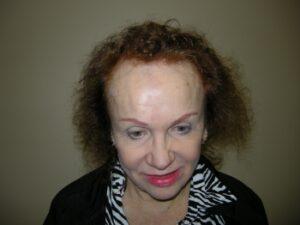 Female Hair Restoration Houston   Hair Restoration Houston