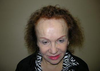 Female Hair Restoration In Houston