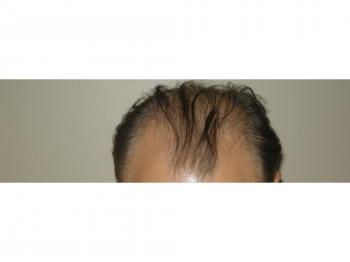 Men's Hair Loss Procedure In Houston