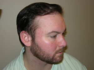 Men's Hair Loss Recovery Houston   PHRC
