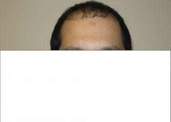Men's Hair Loss Solution In Houston