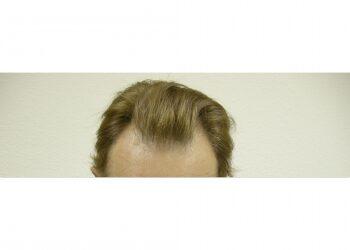 Male Hair Restoration Houston