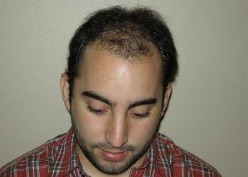 Hair Restoration Procedure In Houston