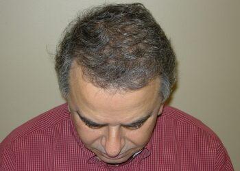 Hair Restoration Results Houston