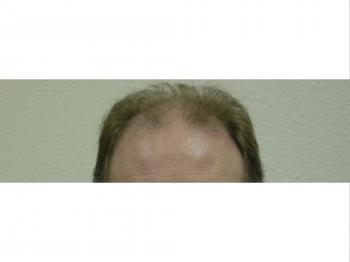 Male Hair Restoration Surgery In Houston