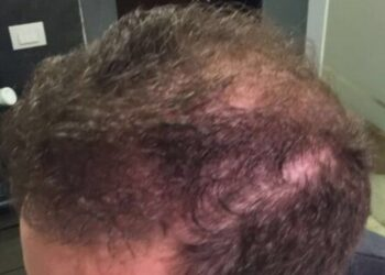 Male Hair Transplant Surgery Results