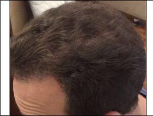 Male Transplant Surgery Results   Hair Restoration Houston