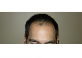 Men's Hair Transplants In Houston