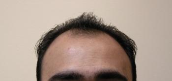 Men's Hair Transplant Results In Houston