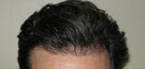 Houston Hair Transplant For Men   Hair Restoration Houston