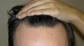 Houston Hair Transplant For Men