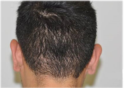 FUE Moth Eaten Hair Donor Restoration Area
