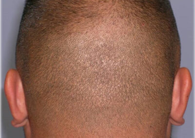 FUE donor scar patient with shaved head - Hair Restoration