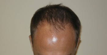 Hair Loss Solutions For Thinning Hair In Houston