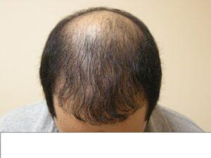 Men's Hair Loss Solution In Houston   Hair Restoration Houston