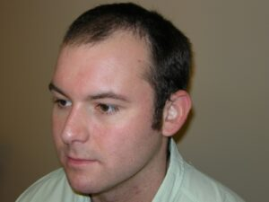 Men's Hair Loss Recovery In Houston
