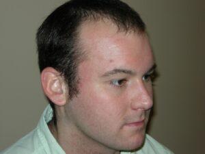 Men's Hair Loss Recovery In Houston   PHRC