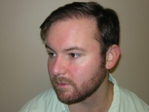 Men's Hair Loss Recovery In Houston   Hair Restoration Houston